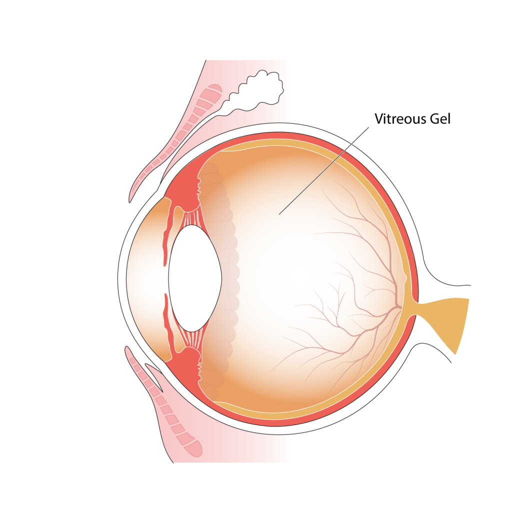 Illustration of parts of the eye, indicating position of the vitreous gel