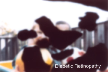 Vision with Diabetic Retinopathy.