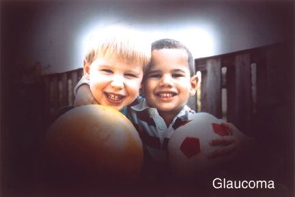 Vision with glaucoma.