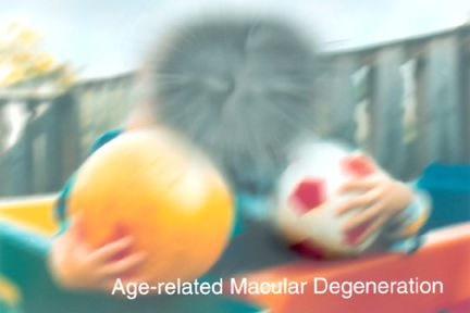 Vision with Macular Degeneration.